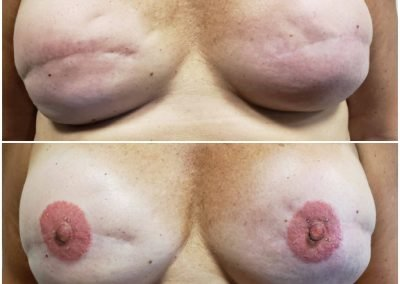 post-surgical tattooed areolas before and after