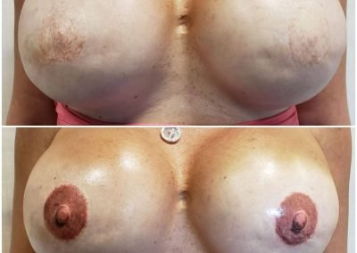 before and after tattooed areolas