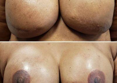 dark skin areolas tattooed