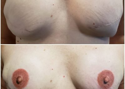 before and after tattoo 3D areola reconstruction
