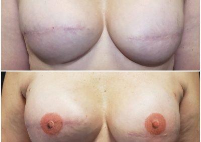 beautiful tattooed areolas on breasts