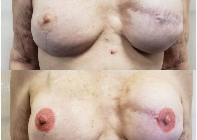 before and after areola reconstruction tattoos
