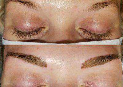 nanobladed eyebrow results