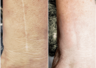surgical scar tattoo camouflage