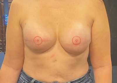 two breasts with areolas drawn on skin