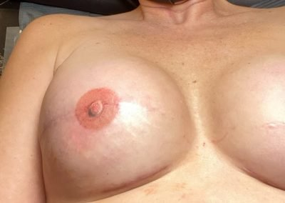 right breast with 3D areola tattoo