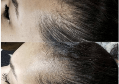 tattoos to cover up bald spots
